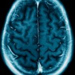 What is Wernicke-korsakoff / Wet Brain Syndrome?