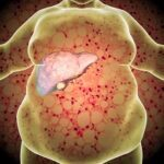 What is Hepatic Steatosis?